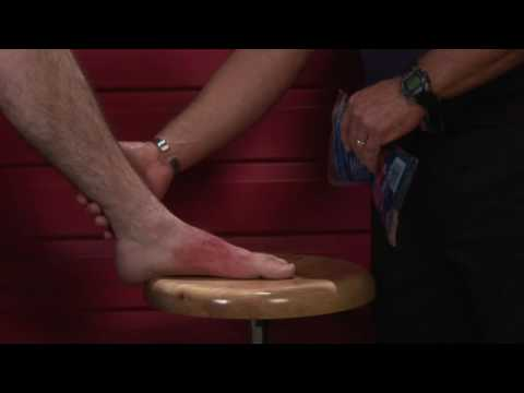 Basic First Aid How To Tell The Difference Between An Ankle Sprain A Break