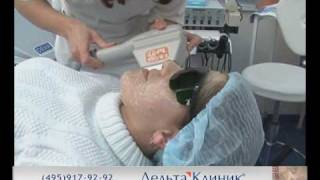 Фотоомоложение кожи в Дельта Клиник. Где сделать подтяжку лица в Москве.