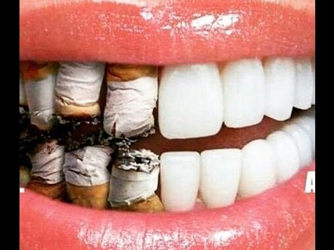 harmful effects of tobacco speech Speech dangers of smoking the danger of smoking for students which can increase the risk of lung remember all the bad effects of smoking.