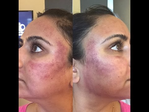 Acne Scar Resurfacing   Collagen Induction Therapy/Medical Grade Micro-needling   VLOG & My Story