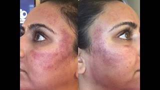 acne scar facial resurfacing stories