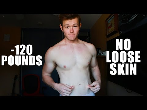 """WHY I DON'T HAVE LOOSE SKIN"" 100+ Pound Weight Loss"