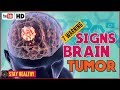 7 Warning Signs of a Brain Tumor You Should Know 💀 Brain Cancer Symptoms