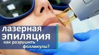 видео Сколько стоит лазерная эпиляция? ???? Стоимость процедуры лазерного удаления волос.