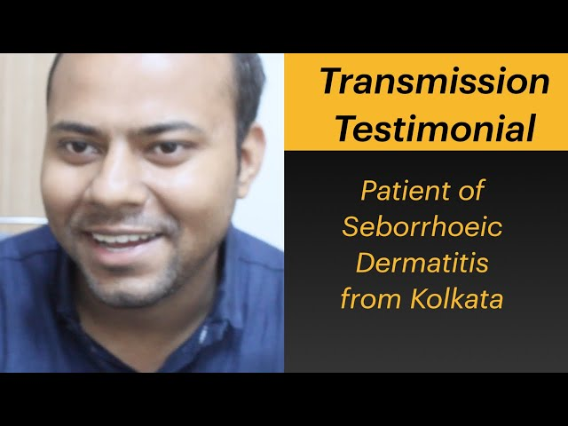 Patient of Seborrhoeic Dermatitis from Kolkata