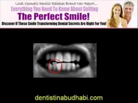 Cosmetic Dentist Abu Dhabi