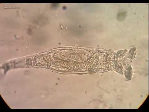 Philodina roseola - Rotifero