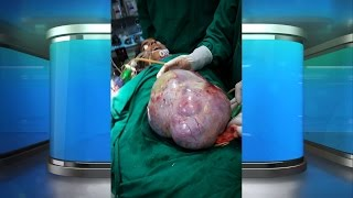 Doctors Remove Largest Ovarian Cyst Ever!