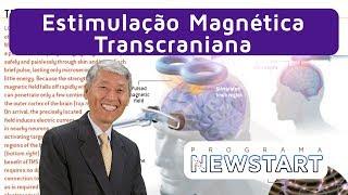 Gambar cover #18 Estimulação Magnética Transcraniana