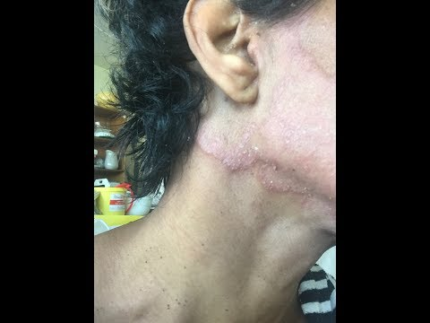 Psoriasis Treatment Cleared My Skin In Less Than 8 Weeks   2019