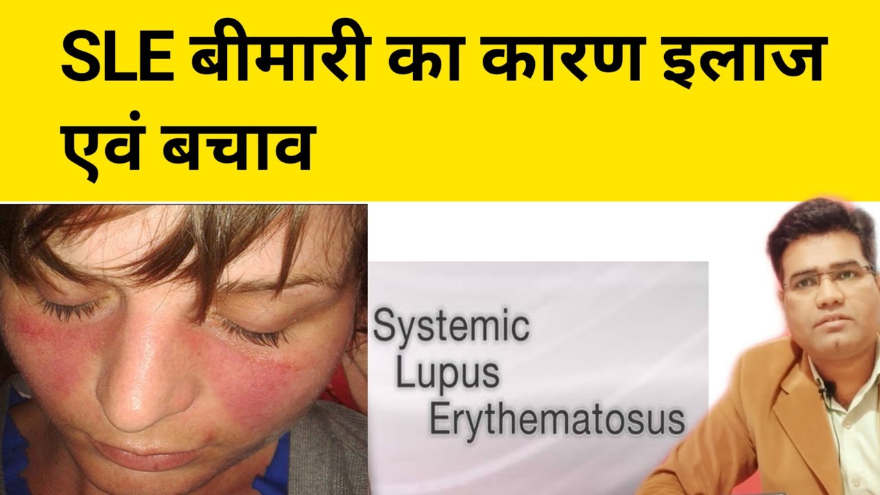 What are Causes Symptoms diagnosis and Treatment of SLE (Systemic Lupu Erythematosus)