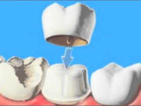 Crown Vs Veneer This Boulder Dentist Explains The