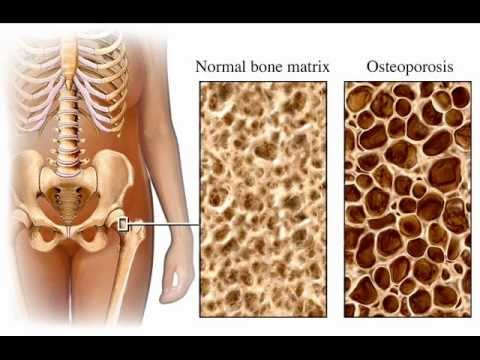 CALCIUM & OSTEOPOROSIS , HEALTH EDUCATION , INFECTION CONTROL (ICSP) , URDU / HINDI