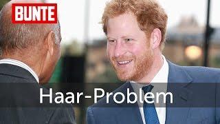 Prinz Harry - Auch er hat das Haar-Problem ... - BUNTE TV