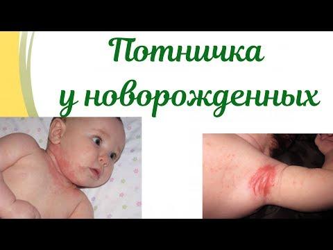 Как выглядит потничка у новорожденного