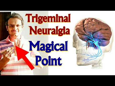 Repeat Acupressure Points For TRIGEMINAL NEURALGIA