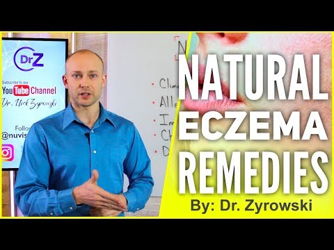 Natural Eczema Remedies | Actually Works!