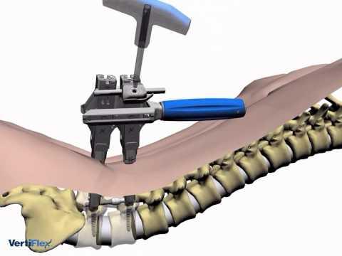 Der Komplex für die Halswirbelsäule