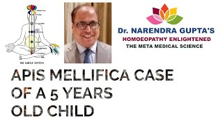 APIS MELLIFICA CASE OF A 5 YEARS OLD CHILD