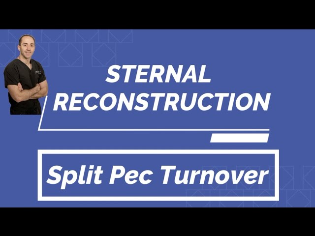 Sternal Reconstruction with Split Pectoralis Major Turnover Flap