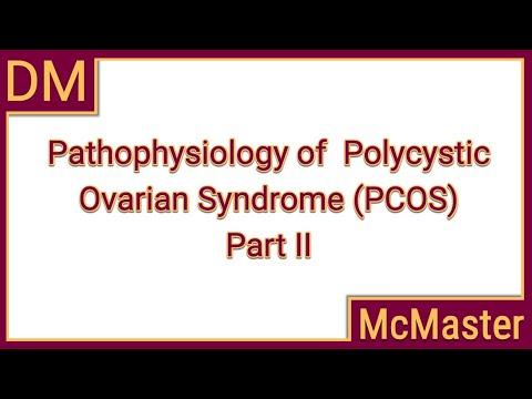 Pathophysiology of polycystic ovarian syndrome