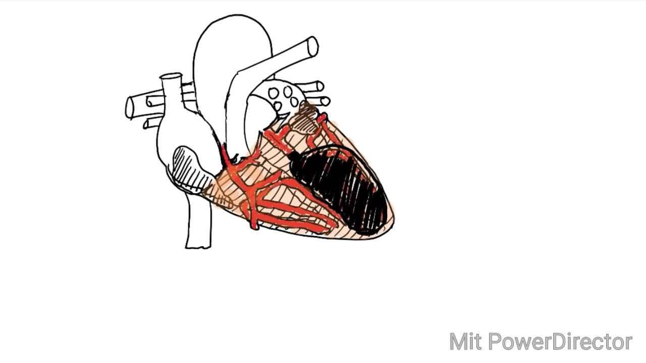 Ekg Interpretation Teil 2 Der Vorderwandinfarkt