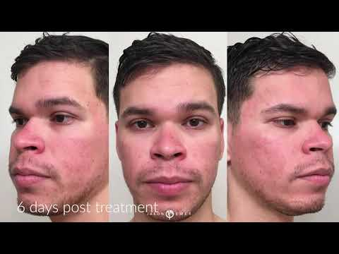 A Patient Story |  Acne Scars | Cosmelan | Halo Laser | West Hollywood, CA | Dr. Jason Emer