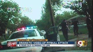 Police shoot, kill pit bulls mauling girl