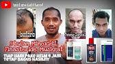 Efek Samping Finasteride Untuk Menumbuhkan Rambut Botak Youtube