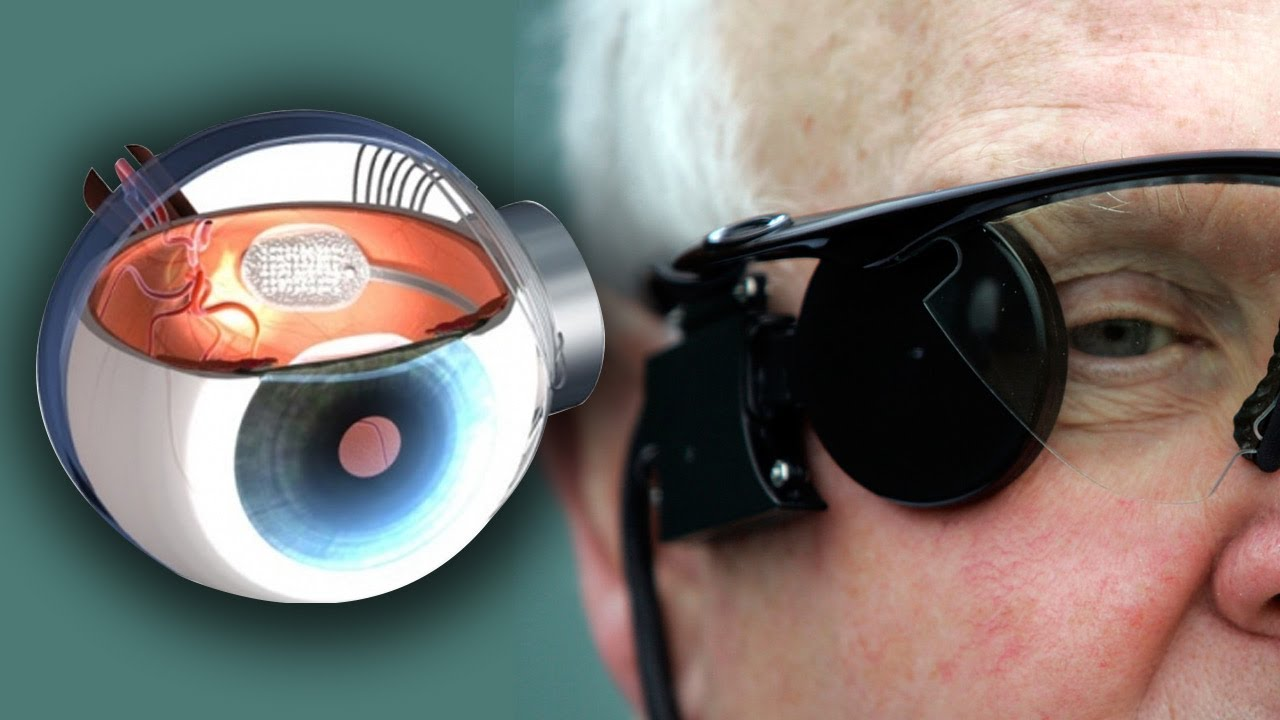 Bionic Glasses For The Blind