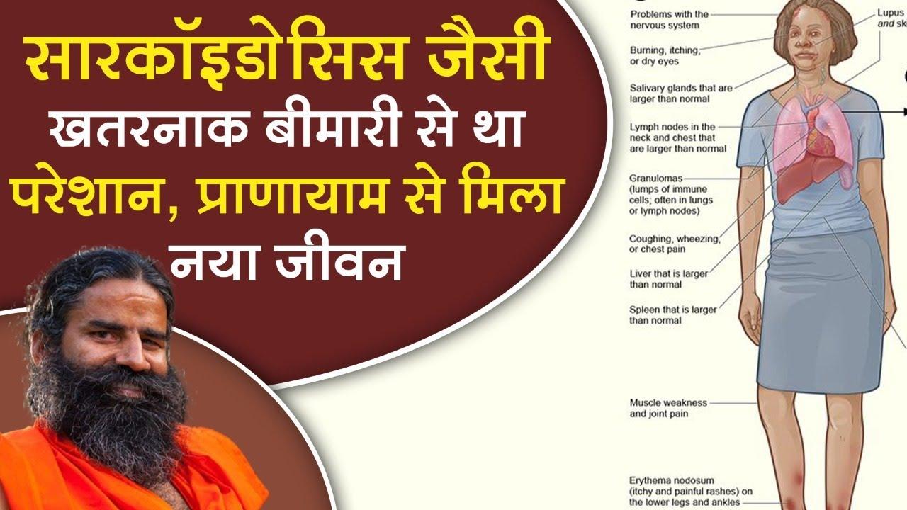 सारकॉइडोसिस जैसी खतरनाक बीमारी से था परेशान, प्राणायाम से मिला नया जीवन || Swami Ramdev