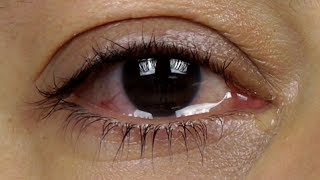 How to stop watery eyes? - Dr. Sunita Rana Agarwal