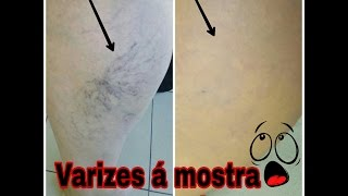 No veias aranha de para rosto melhor maquiagem corporal