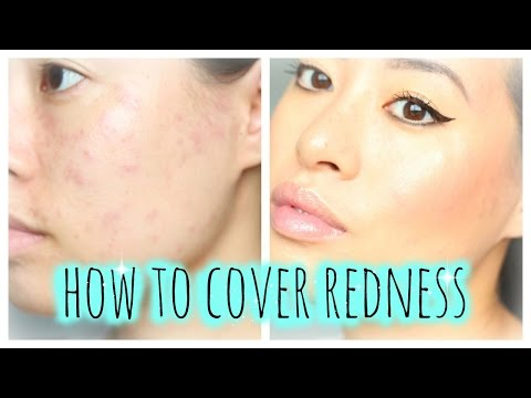 How To: Cover Redness   Allergic reaction, Acne, Breakout, Urticaria, Hives   Makeup Tutorial