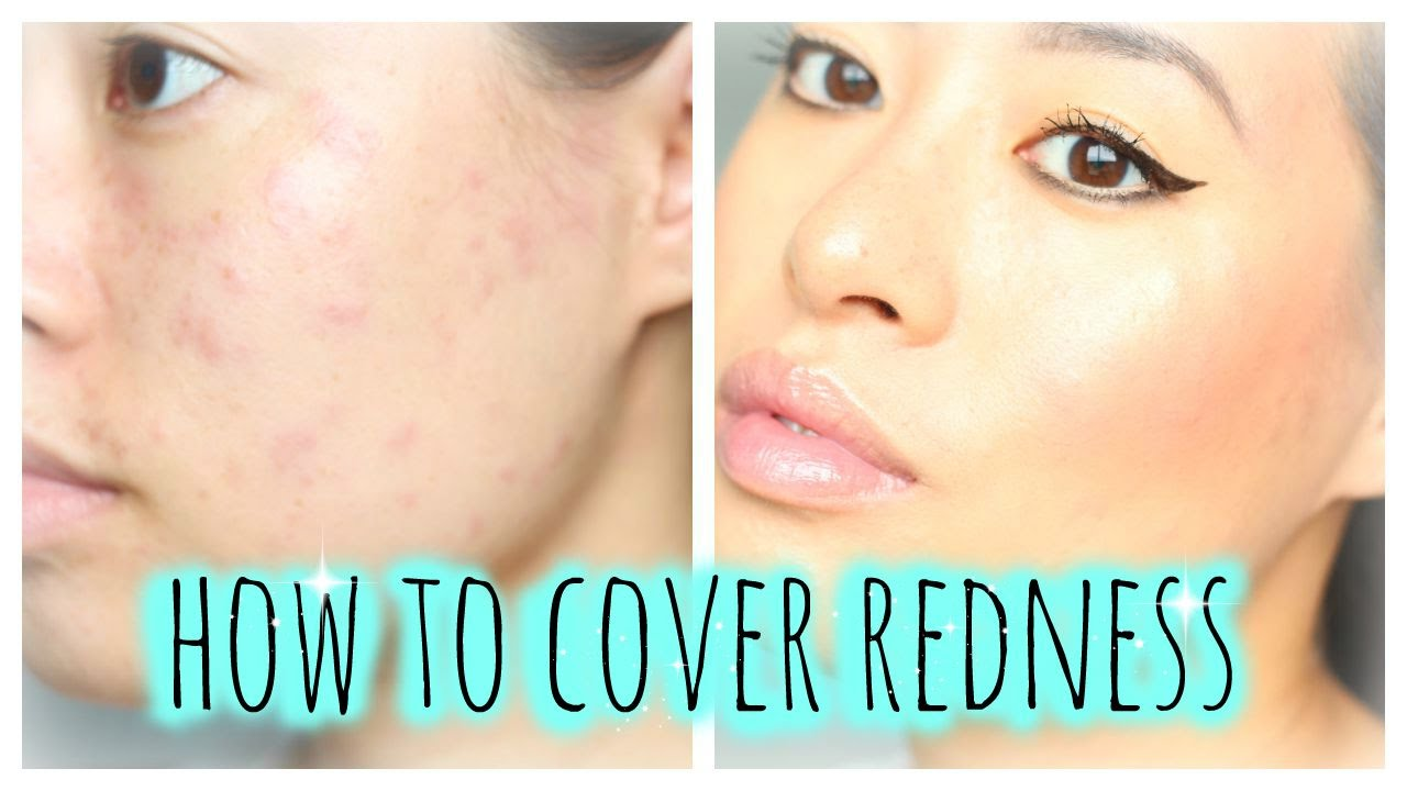 How to cover redness allergic reaction acne breakout how to cover redness allergic reaction acne breakout urticaria hives makeup tutorial ccuart Image collections