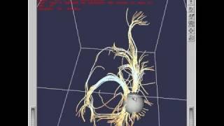 Diffusion Tensor MRI