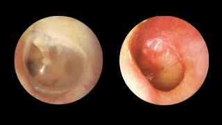 En la ¿Qué de los acumulación líquido oídos? causa