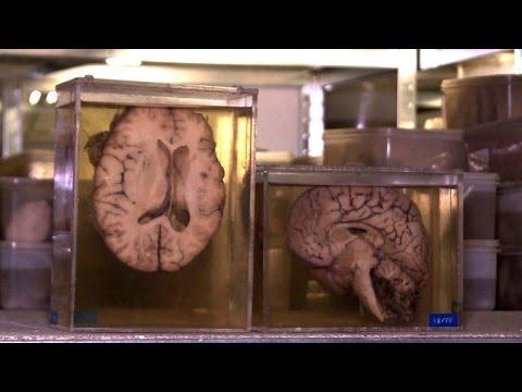 3000 Gehirne: Gruselige