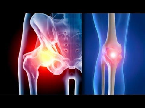 metode pentru tratarea artrozei genunchiului făcând clic în articulațiile genunchilor