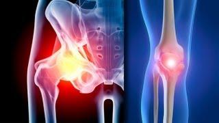 Artroza, boala fara leac? Iata un tratament care ar putea infirma acest mit!(Peste 80% dintre noi vom suferi de un oarecare grad de artroza pana la varsta de 65 de ani. Aceasta inseamna oare ca nu avem nici o sansa in fata acestei boli ..., 2013-10-16T14:14:20.000Z)