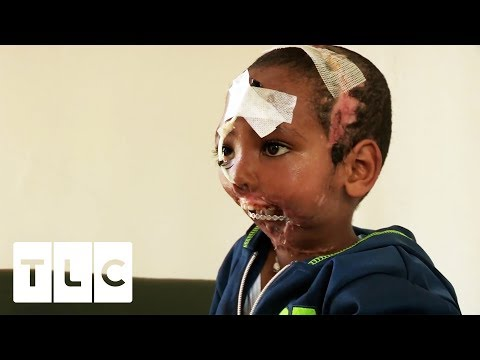 Boy has Jaw Ripped Off by Hyena | Body...