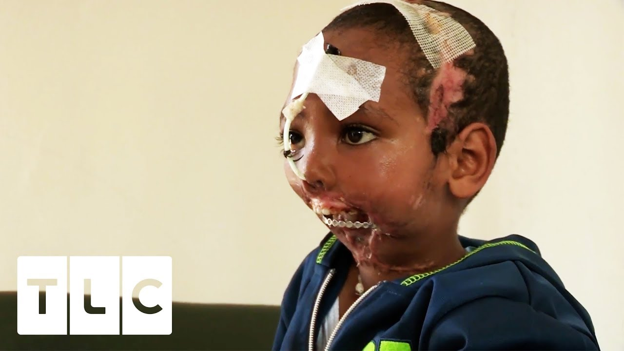 Boy Has Jaw Ripped Off By Hyena  Body Bizarre - Youtube-5958