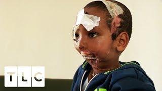 Boy Has Jaw Ripped Off By Hyena | Body Bizarre