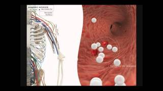Neuropatía periférica y neuropatía di...