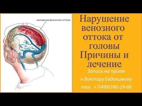 Как улучшить венозный отток крови из головы