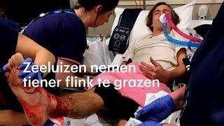 Gepakt door zeeluizen: 'Mijn enkels onder het bloed' - RTL NIEUWS