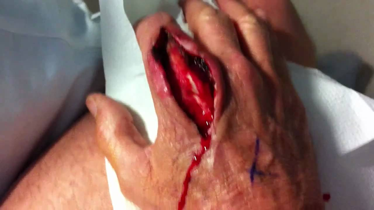 Surgical Wound Infection Symptoms, Diagnosis, Treatments ...