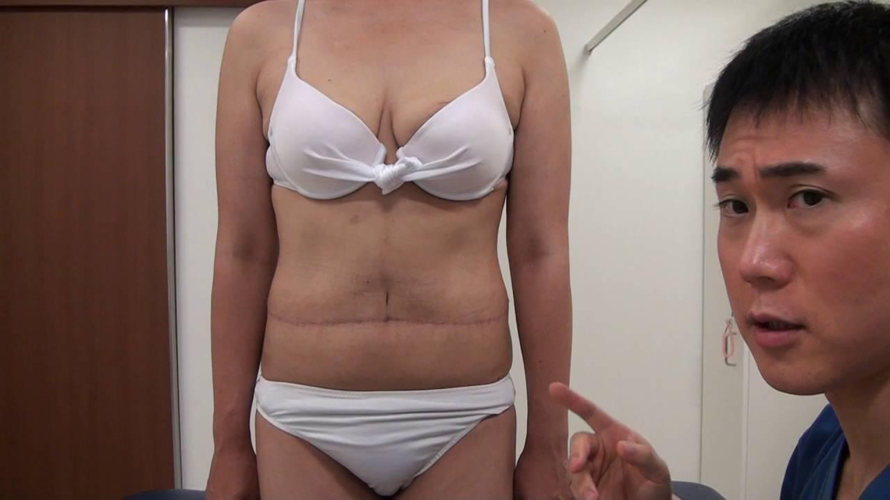 高須クリニック お腹のたるみ取り手術 術後6カ月の経過、傷跡 美容整形外科動画