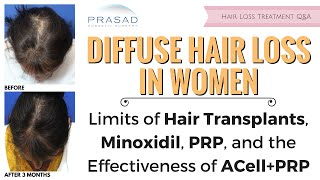 Treating Diffuse Hair Loss in Women Despite Limits of Hair Transplants, PRP, and Minoxidil