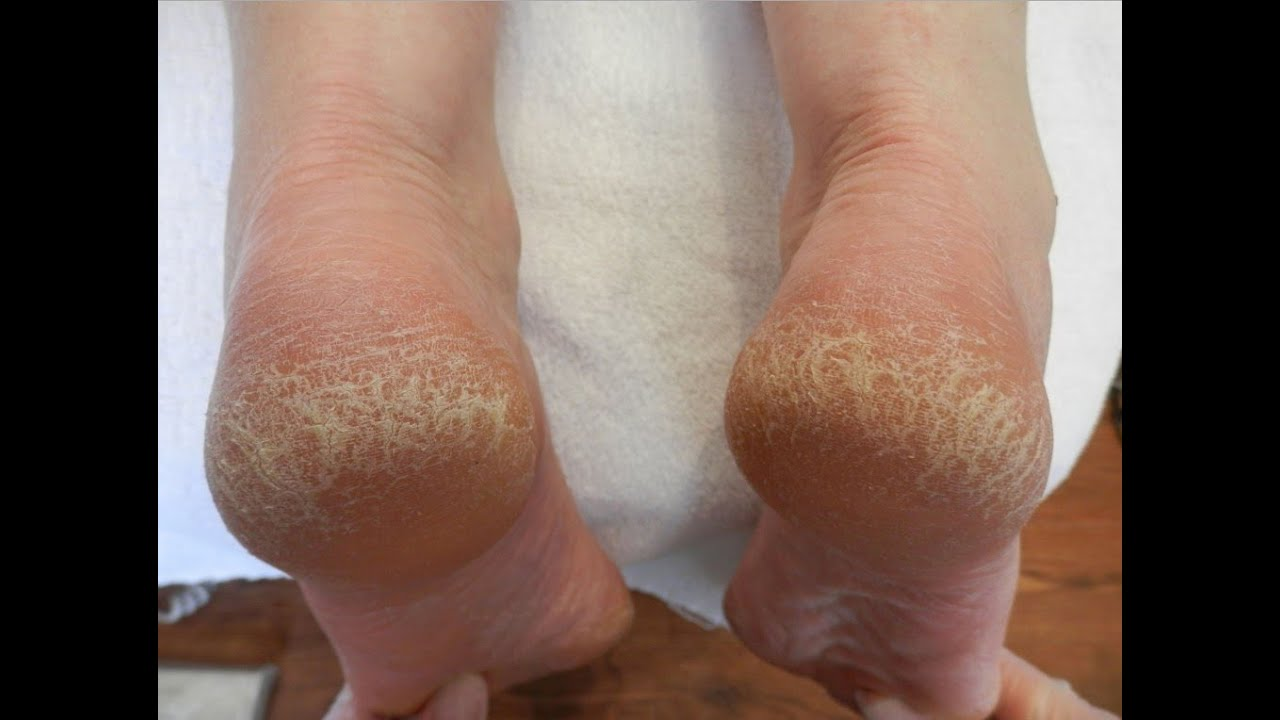 what causes cracked feet skin